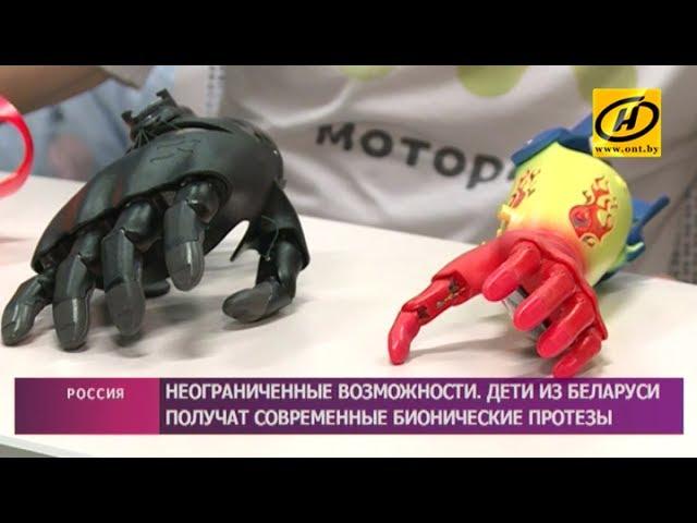 Современные бионические протезы получат дети из Беларуси