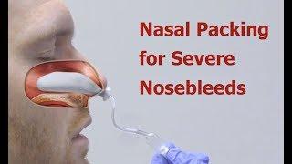 Nasal Packing for Severe Nosebleeds
