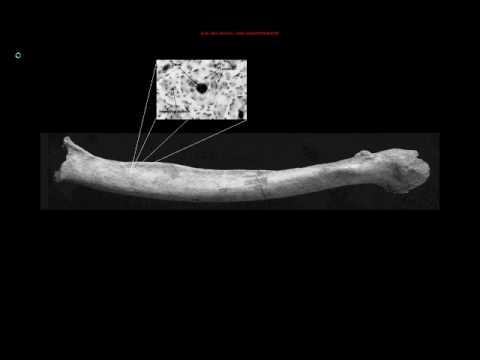 ENG 112 Video: Bone Remodeling