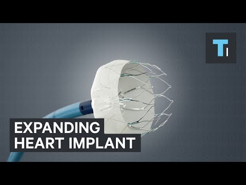 This expanding implant could cut the risk of strokes