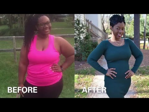 Ashley's Story - Adolescent Bariatric Surgery
