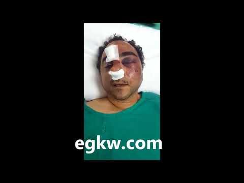 اول فيديو للمصري المعتدى عليه في الكويت