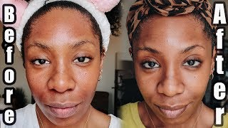 Banish Acne Scars & Hyperpigmentation : Microneedling At Home | NaturallyNellzy