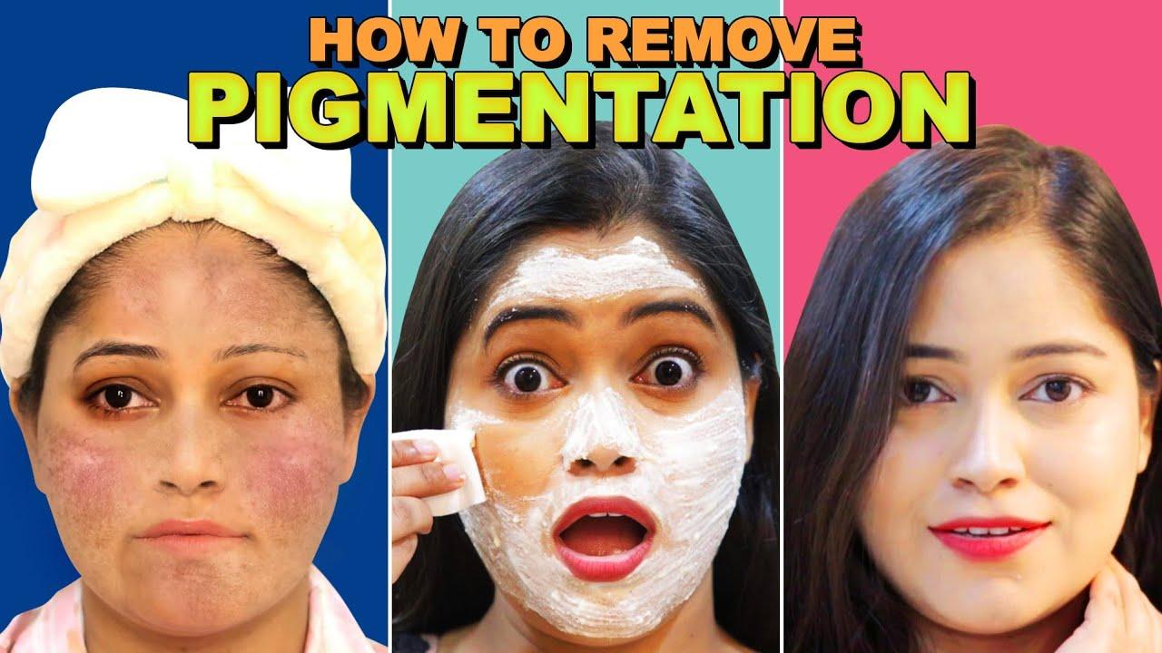 How to remove Pigmentation Naturally😯कितने भी गहरे दाग धब्बे हो सब गायब Remove Dark spots, Acnes