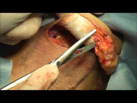 二本で行われるわきがの除去施術。大きな穴を開けにおいの原因の粒々を取りだし傷あとなく治療を行う!