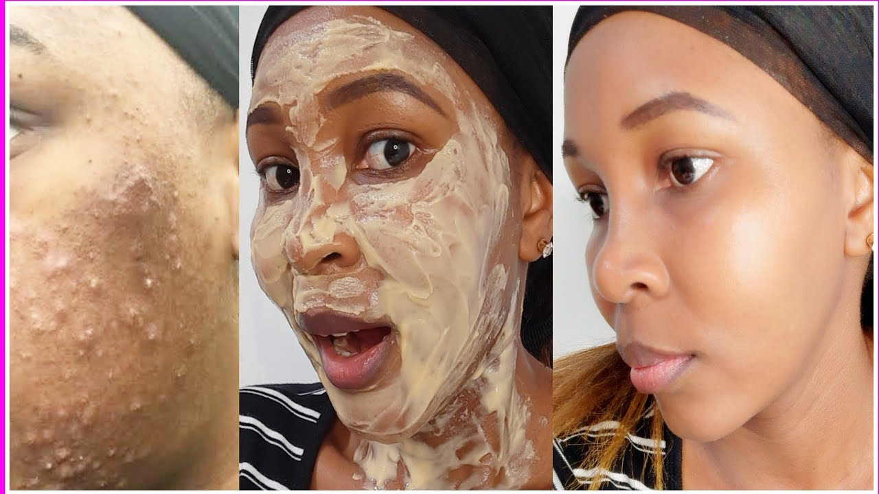 Remove PIMPLES,ACNE,DARK SPOT instantly with Gram flour | Besan Face Pack