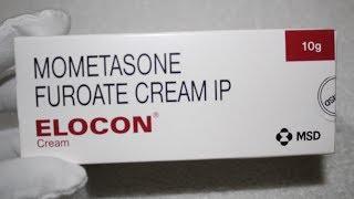 ELOCON Cream Review | क्या ये cream चेहरे को गोरा बनाता है ?????