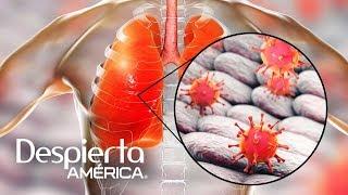 Adenovirus: causas, síntomas, tratamiento y prevención | Dr. Juan