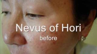 Laser removal for freckles and sunspots  Philippines and Asia.wmv