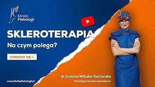 Skleroterapia - na czym polega?