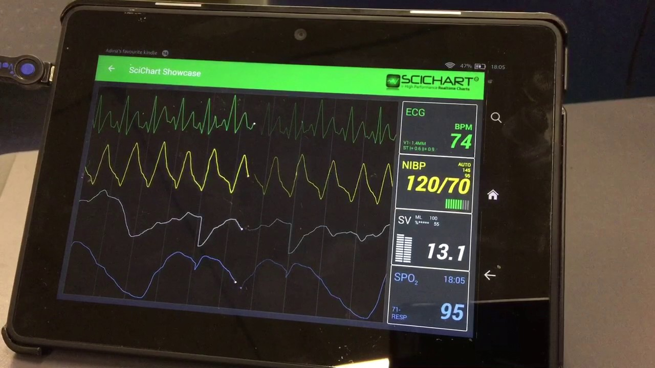 Realtime Android ECG / Medical Software using SciChart