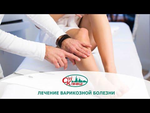 Лечение варикоза (варикозной болезни). Методы лечения варикоза. | профилактика | беременности | варикоза | лечение | варикоз | лечить | ногах | при | как | вен