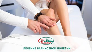 Лечение варикоза (варикозной болезни). Методы лечения варикоза.(, 2016-06-06T10:20:59.000Z)