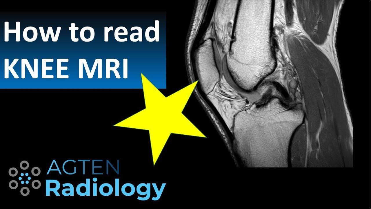 myron térd ligamentum károsodás
