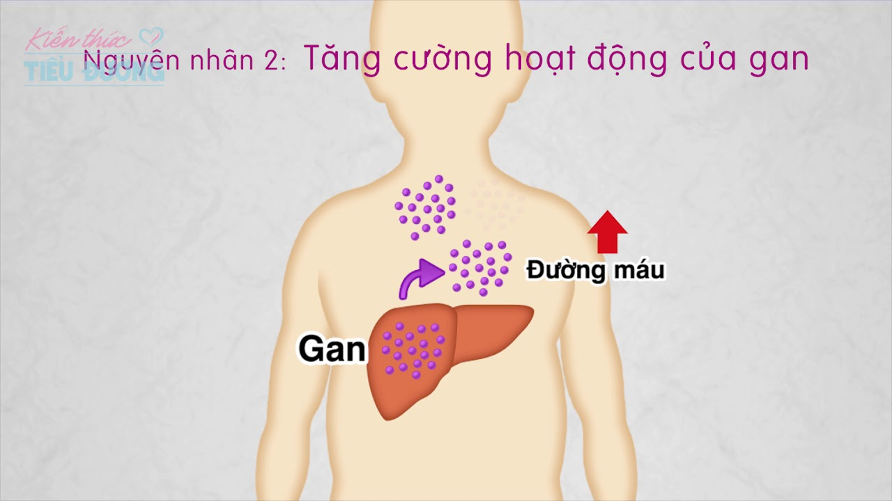 【3-7】Phương pháp điều trị bệnh Tiểu đường bằng thuốc || Kienthuctieuduong.vn