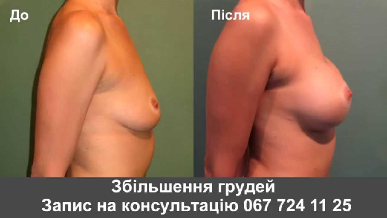 Как увеличить грудь в 50 лет