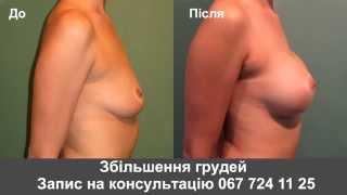Увеличение груди. Пластика груди. Хирург Андрей Резник