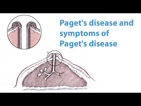 Paget's Disease And Symptoms Of Paget's Disease