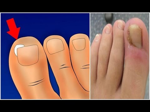 ☛How To TREAT AND REMOVE an INGROWN TOENAIL Without Surgery!! (HOME ...