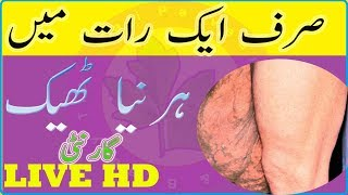 Harniya Ka Ilaj - Harniyan Ka Bagir operation Ke Ilaj  -  hernia without surgery treatment in Urdu