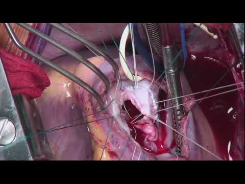 Tricuspid Valve Reconstruction for Infective Endocarditis: Operative Highlights
