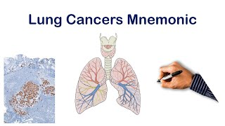 Support the channel if it's helped you: https://www.patreon.com/step1domination this video on lung cancer types is intended for educational purposes only. co...