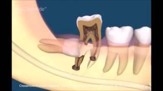 Лечение воспаления зуба мудрости(, 2016-03-15T13:26:42.000Z)