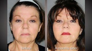 Y LIFT ® 2012 - Kathie | Instant, Non Surgical Facelift