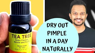 HOW TO USE TEA TREE OIL FOR ACNE, PIMPLES & SCARS | TREAT BODY ACNE, BUTT ACNE AND PIMPLES