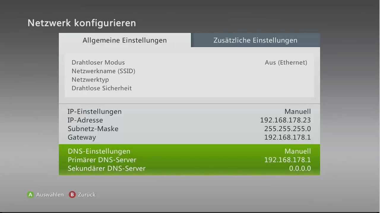 how to change your xbox one ip address