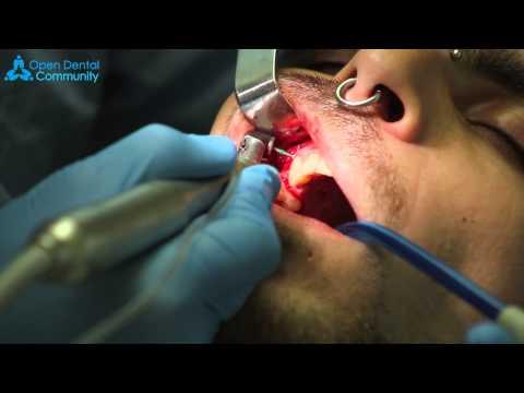 Что такое зубной имплант? И как происходит процесс его