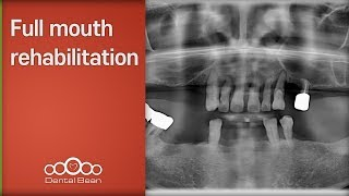 Full mouth rehabilitation [#Dentalbean]