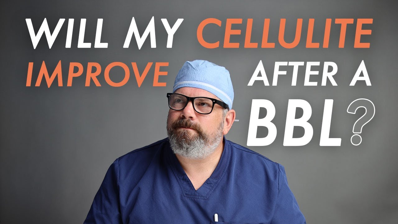 Will Cellulite Improve After a BBL?