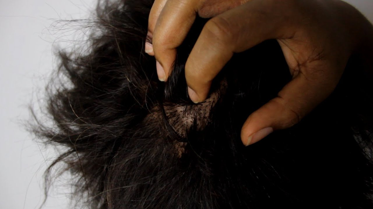Dry scalp patches that bleed when itched
