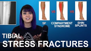 Tibial Stress Fractures: Cause, Treatment, Comparisons