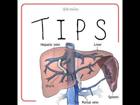(TIPS)Трансюгулярное внутрипеченочное портоcистемное шунтирование - на УЗИ печени