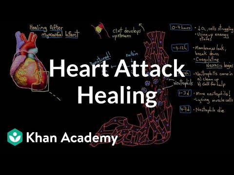 Healing after a heart attack (myocardial infarction)   NCLEX-RN   Khan Academy