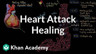 Healing after a heart attack (myocardial infarction) | NCLEX-RN | Khan Academy