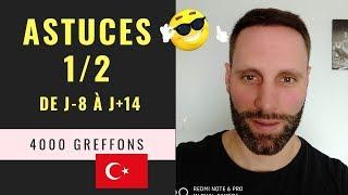 Greffe de cheveux FUE en Turquie [Vidéo 23] - Astuces 1/2 de J-8 à J+14 - 4000 Greffons