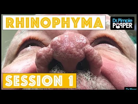 Rhinophyma treatment Session One