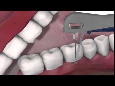 Лечение десен аппаратом Вектор - клиника Наш дантист