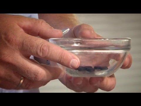 Отравление шампиньонами: симптомы и лечение