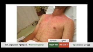 аллергическая реакция тела человека на соль