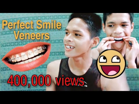 Snap on smile review/rhazeniel