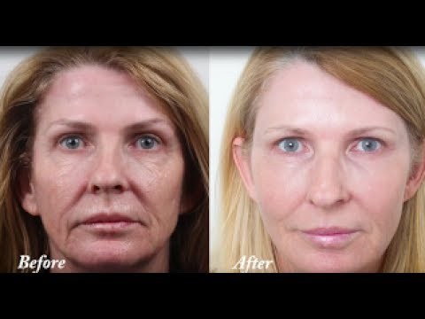 CO2 Laser resurfacing - wrinkle removal and skin tightening