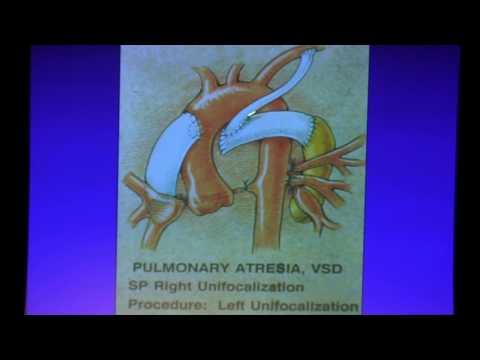 Adult Congenital Cardiac Surgery - Dr. Hillel Laks | 2017 UCLA ACHD Symposium