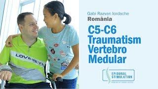 spondiloza cervicala c5 c6)