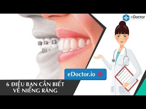 6 điều bạn cần biết về niềng răng