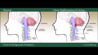 2019 Think Tank: Symptoms Worsen Despite 'Successful' Syringomyelia Surgery - Jay Shetty, MBBS.