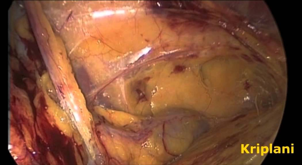 Laparoscopic Inguinal Groin Hernia Repair Surgery Tapp Approach
